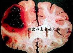 【最全总结】什么是脑出血?