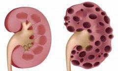 肾囊肿是什么