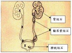 尿路结石是怎么形成的