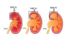 肾积水是什么