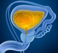 酒后憋尿易导致膀胱破裂
