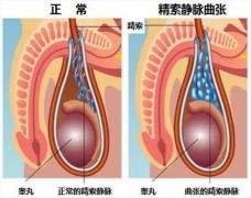 精索静脉曲张 医生:不及时治疗可能会影响生育